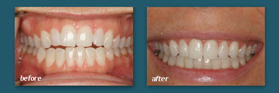 Before Plus After Photos of Invisalign San Diego