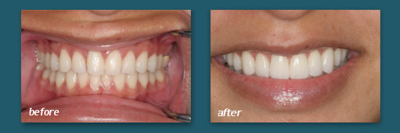Photos of various Mission Hills patients before and after receiving teeth veneers in San Diego.