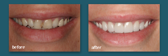 San Diego patient with dental veneers.