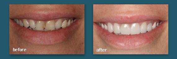get dental veneers today at our San Diego office