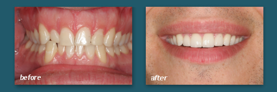 Mission Hills patient with dental veneers.