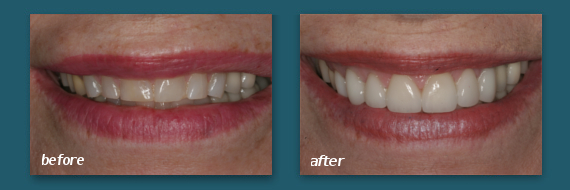 Hillcrest patient with dental veneers.