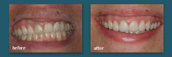 Patient of Marcos Ortega DDS showing off his porcelain teeth veneers.
