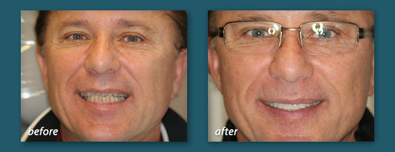Before and after photo of an actual Hillcrest porcelain dental veneers patient of Marcos Ortega DDS.