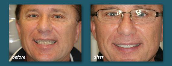 try dental veneers at our San Diego dentistry
