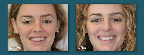 Invisalign Before and After - Marcos Ortega Hillcrest San Diego Dentist