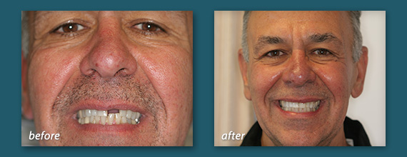 Implant dentistry is available in San Diego thanks to Dr. Marcos Ortega, a tooth implant dentist providing dental implants to Hillcrest and Mission Hills.