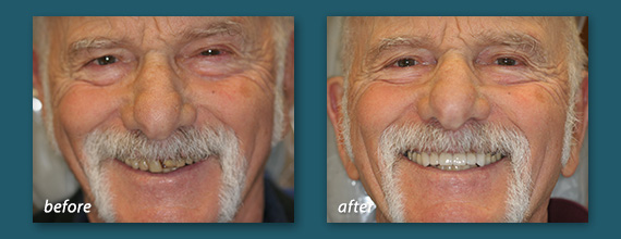 Dental Crowns Before and After - Marcos Ortega Hillcrest San Diego Dentist