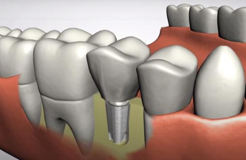Dental Implant - Marcos Ortega Hillcrest San Diego Dentist