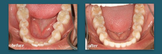 straighten teeth with clear braces from a San Diego dentist
